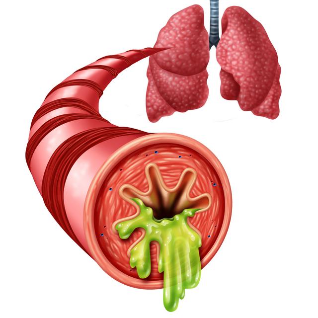 Bronchitis Anatomy Concept