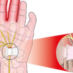 9 Home Remedies for Relief of Carpal Tunnel Syndrome in Louisiana