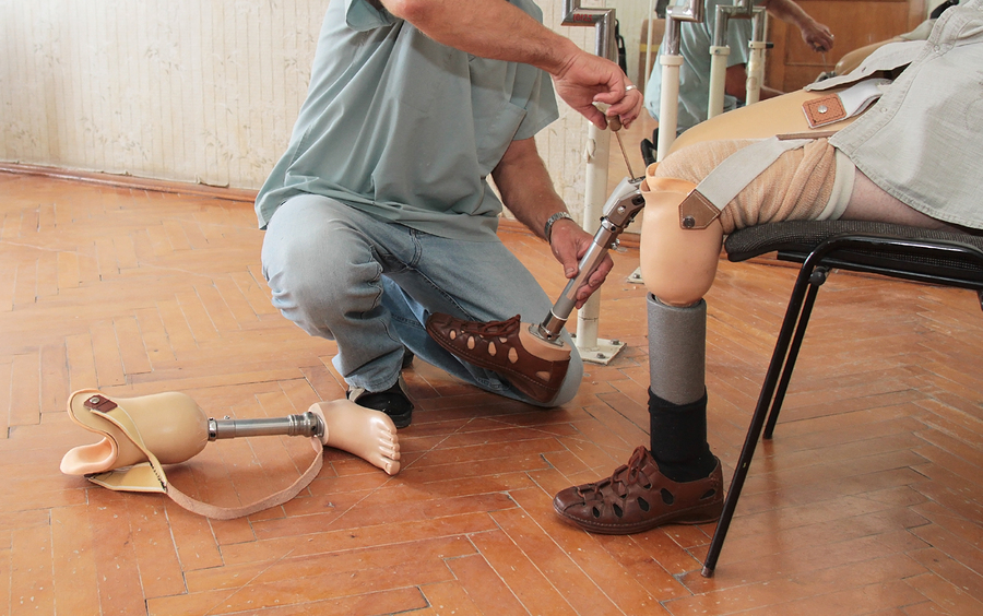 Hands machinery governing prosthetic
