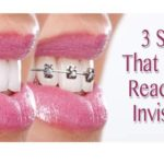 3 Signs That You're Ready For Invisalign in Newton